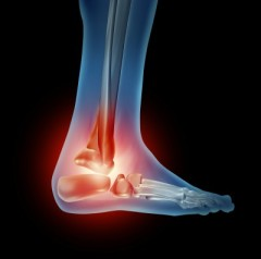 CRPS ankle pain